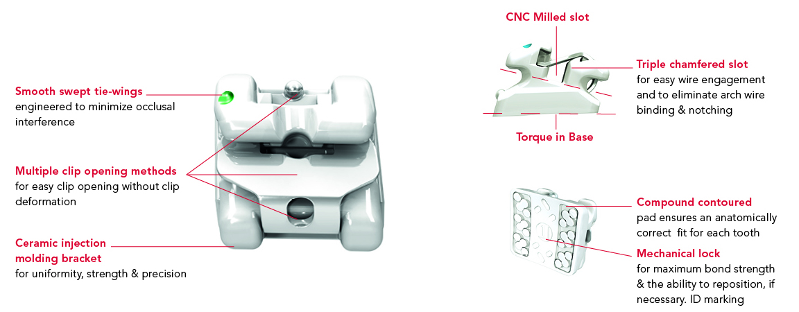 EXPERIENCE mini Ceramic | GC Orthodontícs
